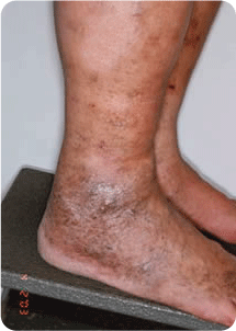 Advanced-Venous Spider and Varicose Vein Treatment Melbourne 01