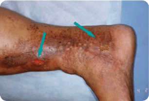 Advanced-Venous Spider and Varicose Vein Treatment Melbourne 02