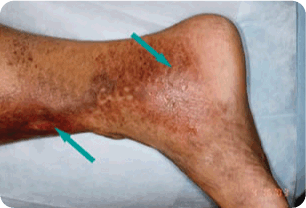 Advanced-Venous Spider and Varicose Vein Treatment Melbourne 04