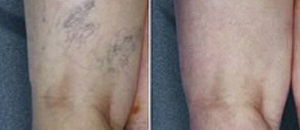 Spider Vein Treatment at Vein Care