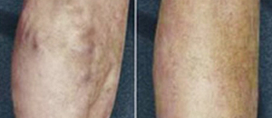 Large Varicose Vein Treatment Case 2