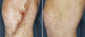Large Varicose Vein Treatment