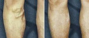 Varicose Vein Treatment at Vein Care Case 4