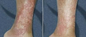Venous Ulcer Treatment At Vein Care