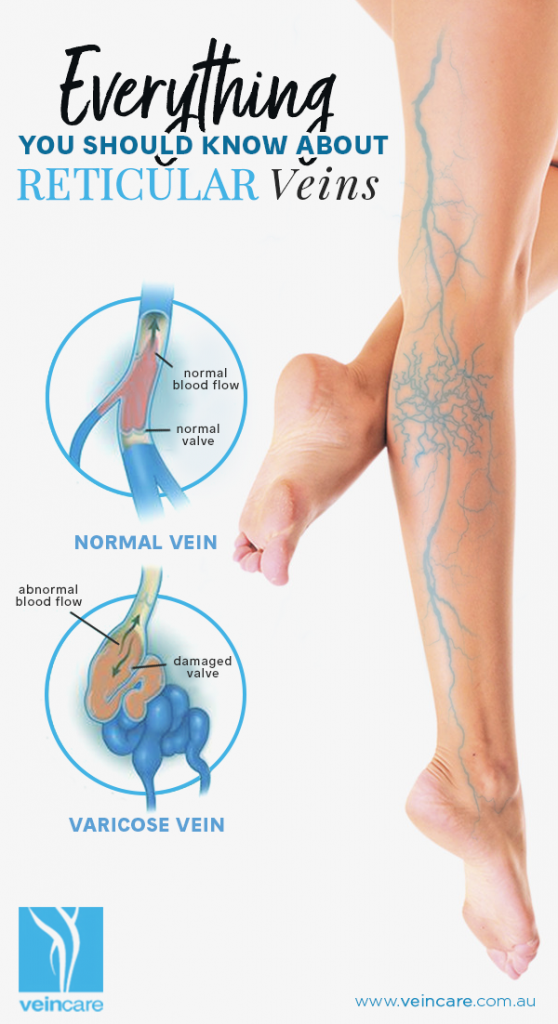 Everything You Should Know About Reticular Veins - VeinCare