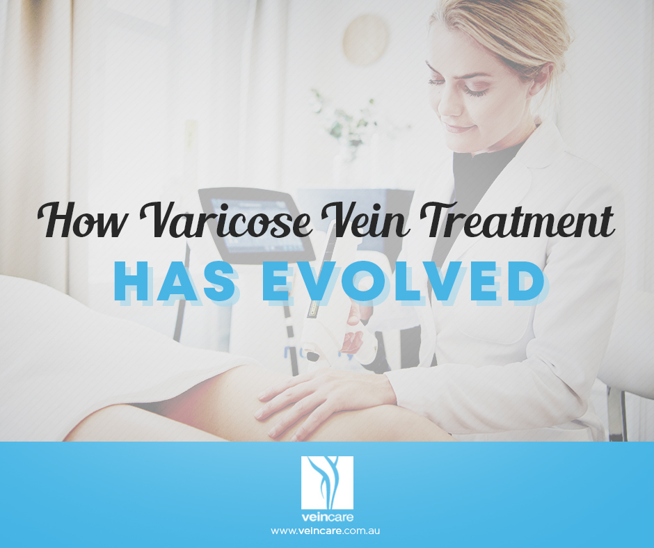 Varicose vein treatment has evolved over time