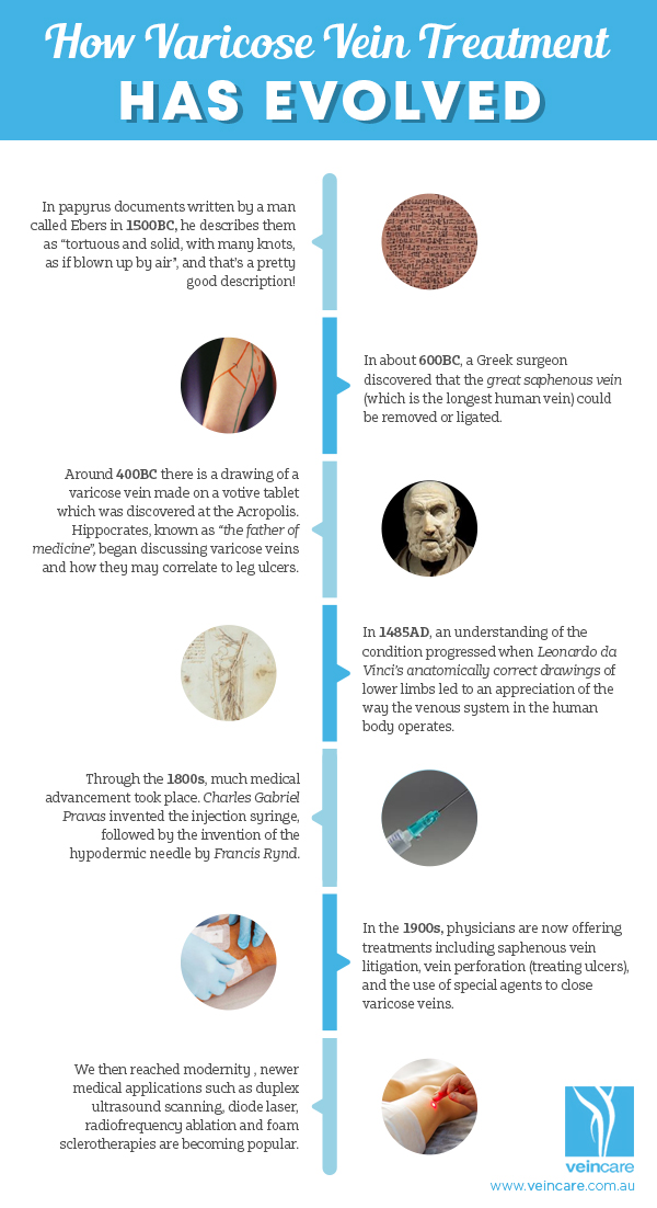Veincare-varicose_veins_how_it_evolved_infographic