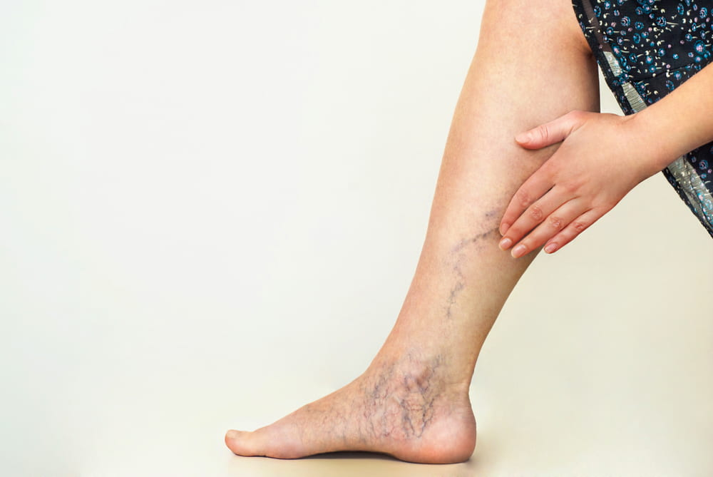 A lady with varicose veins