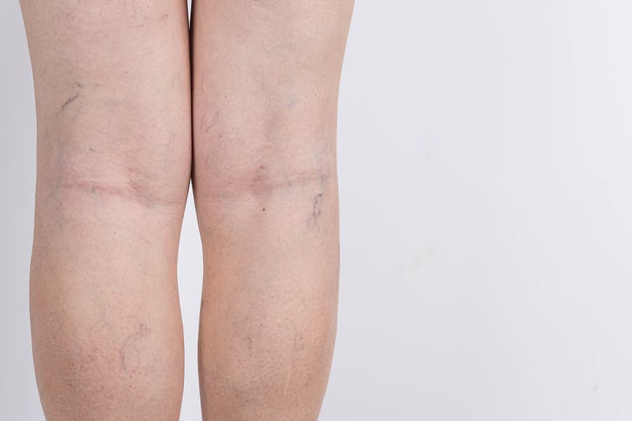 Varicose veins on legs of woman