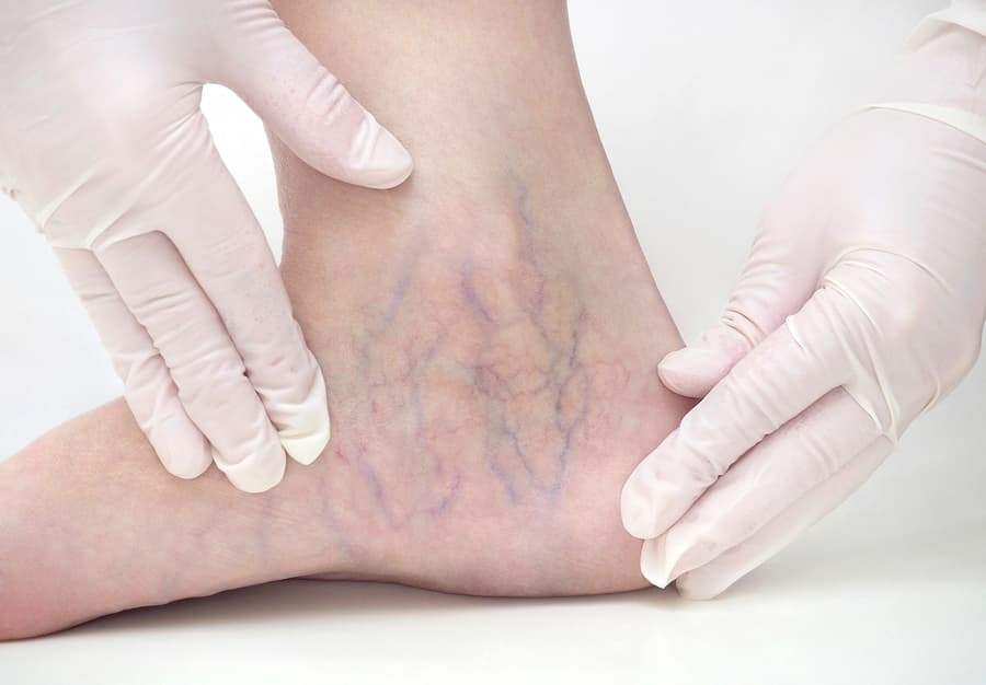 Spider veins on the womans legs, sclerotherapy treatment