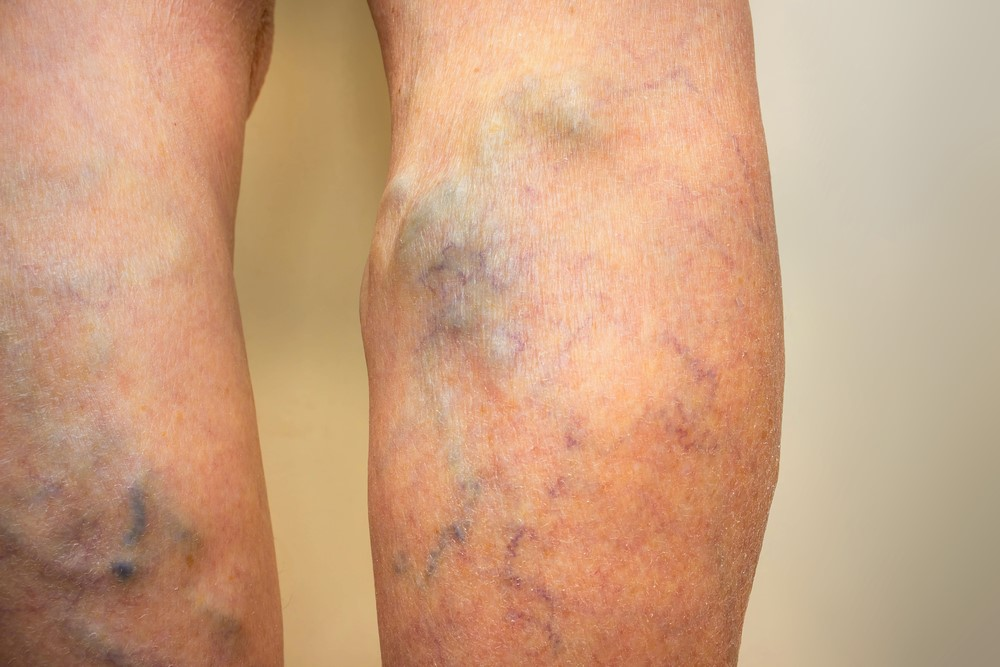 Understanding Diseased Veins and Their Effect on the Body
