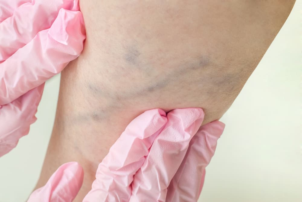 The Benefits of Non-Surgical Vein Treatments