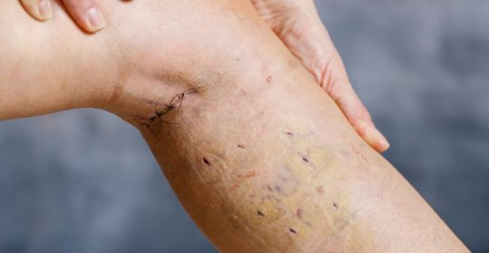 Does Surgery on Varicose Veins Cause Scarring?