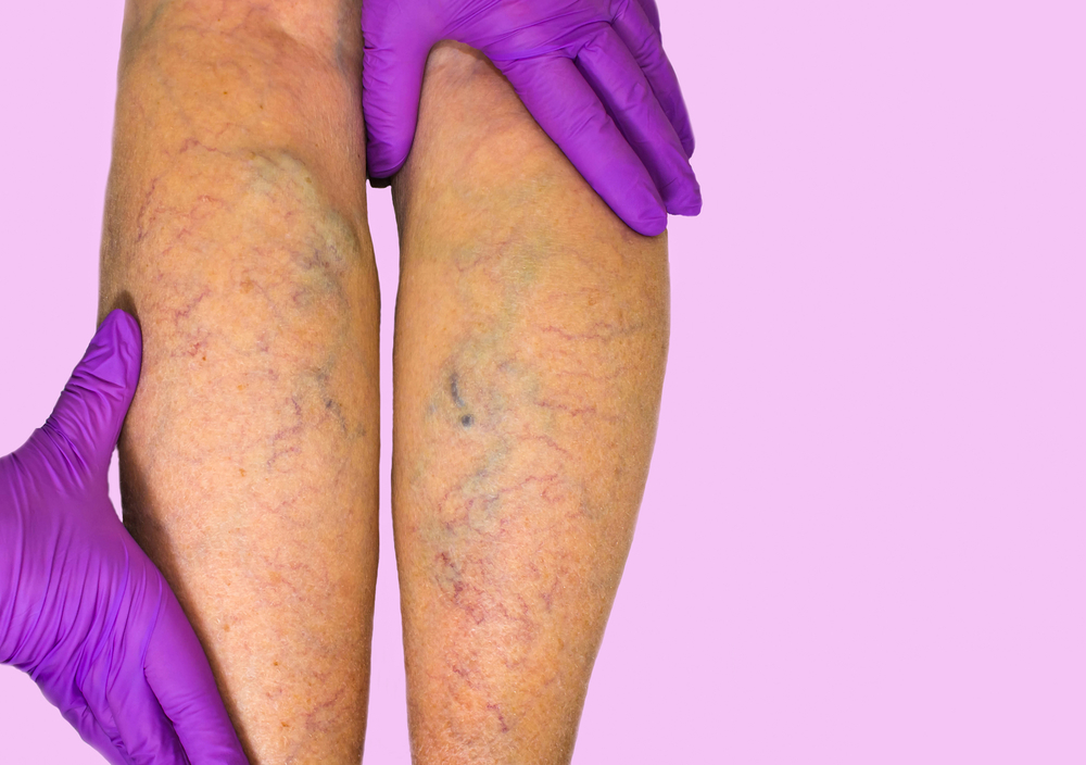 Lower limb vascular examination because suspect of venous insufficiency. Phlebology and DVT