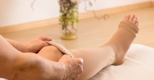 Home Remedies for Minimising Varicose Veins