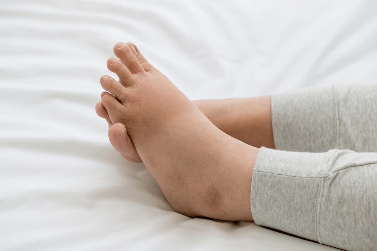 Women leg with swelling feet lying on bed.