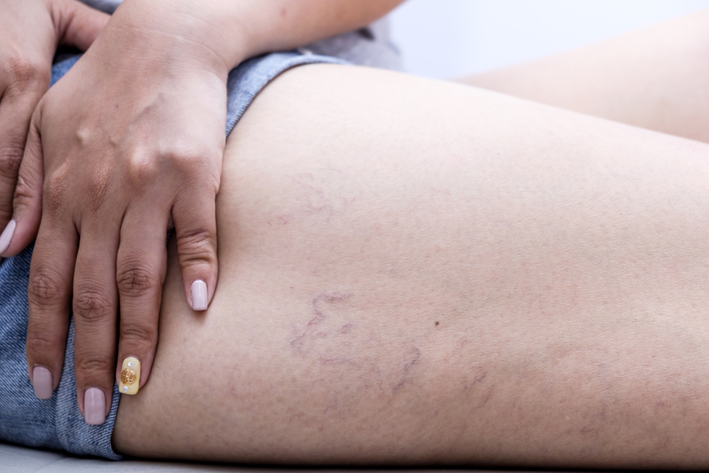 Spider veins on woman's leg in purple shorts.