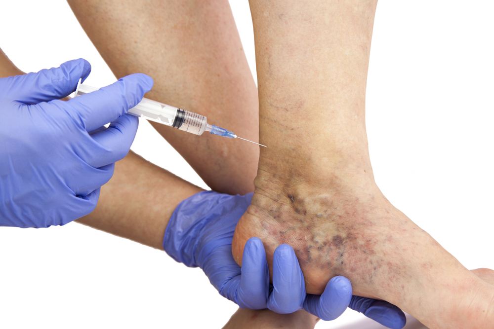 Doctor holds a syringe to varicose veins on leg.