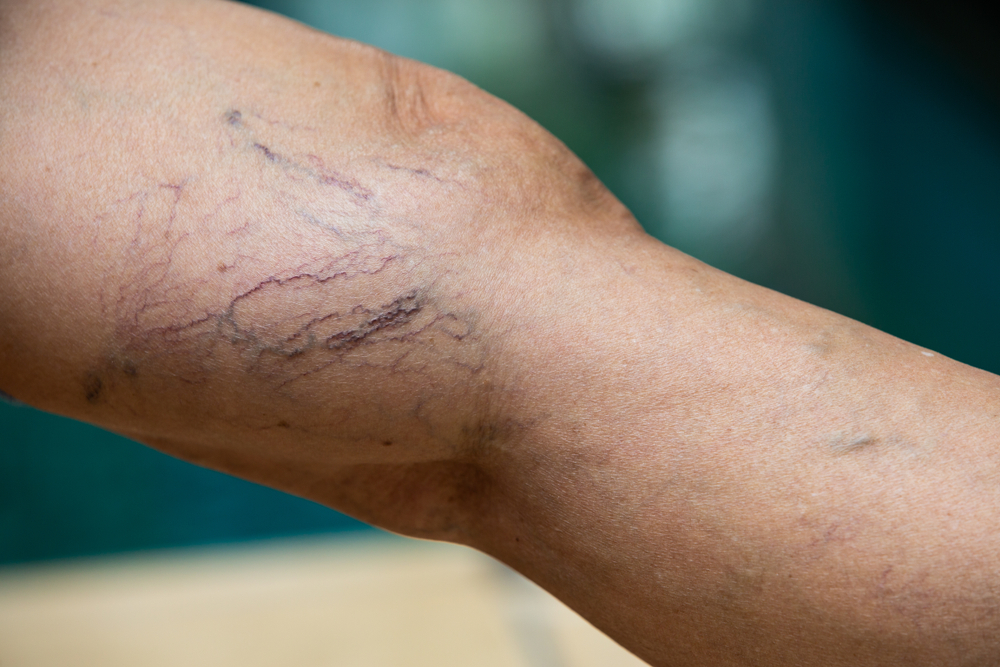 Different Types of Veins – An Overview