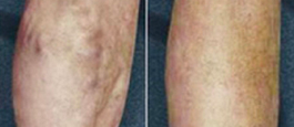 Large varicose veins