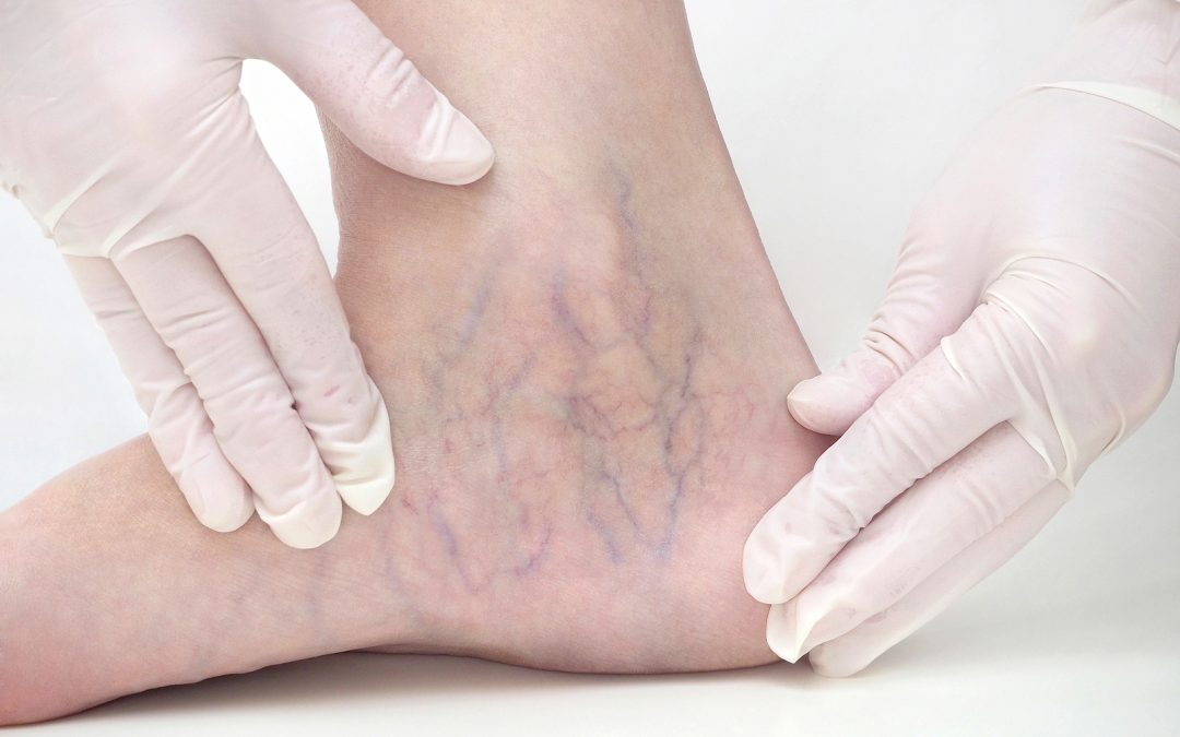 Aftercare restrictions for sclerotherapy