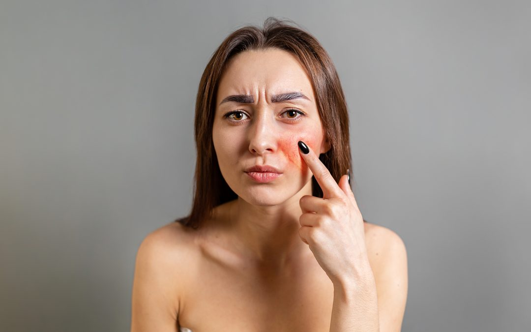 woman points a finger at a red cheek with inflammation