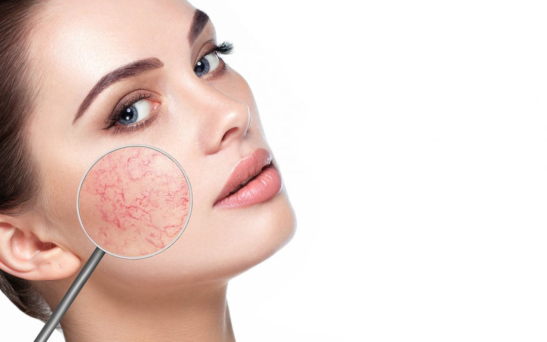 magnifying glass showing Rosacea on womans face