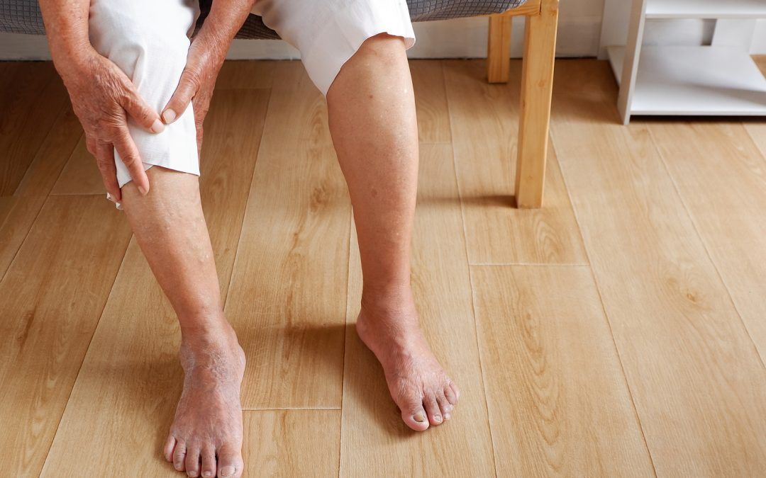 Treating a Family History of Varicose Veins